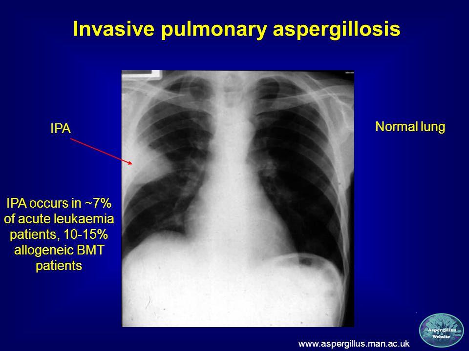 Invasive pulmonary aspergillosis www.aspergillus.man.ac.uk Normal lung IPA IPA occurs in ~7% of acute leukaemia patients, 10-15% allogeneic BMT patien