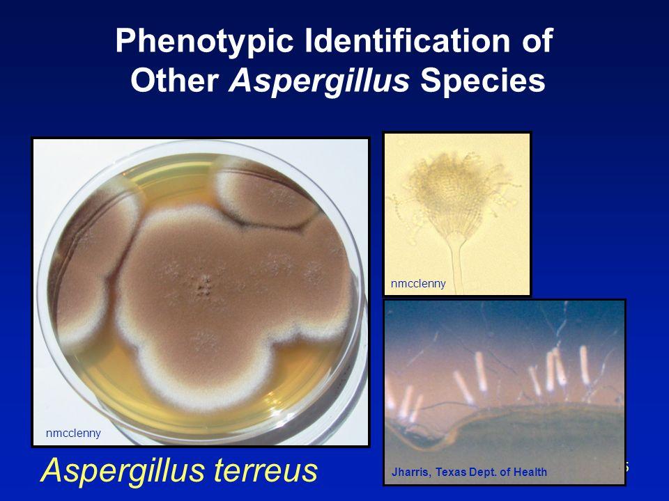 15 Aspergillus terreus Jharris, Texas Dept. of Health nmcclenny Phenotypic Identification of Other Aspergillus Species nmcclenny