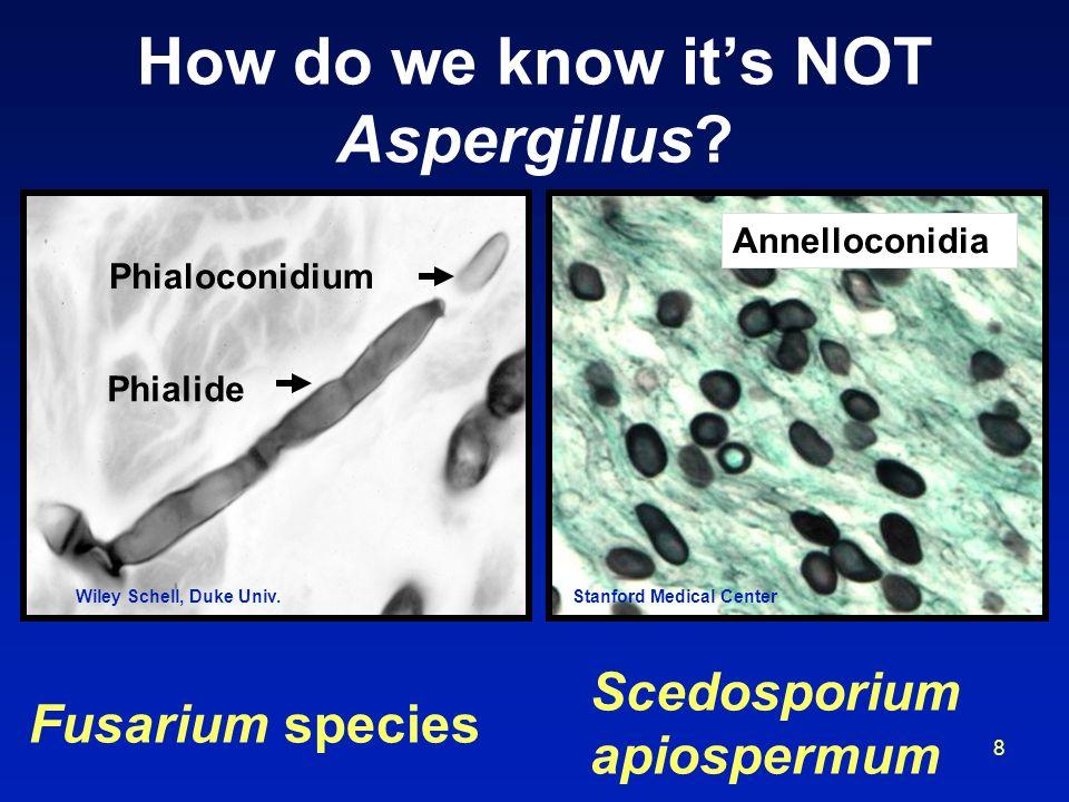 8 How do we know its NOT Aspergillus? Phialide Phialoconidium Fusarium species Annelloconidia Scedosporium apiospermum Wiley Schell, Duke Univ.Stanfor