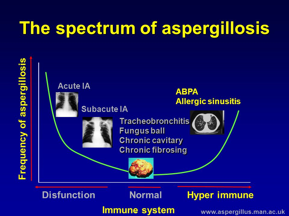 The spectrum of aspergillosis Acute IA Subacute IA ABPA Allergic sinusitis. Frequency of aspergillosis Disfunction Immune system NormalHyper immune Tr