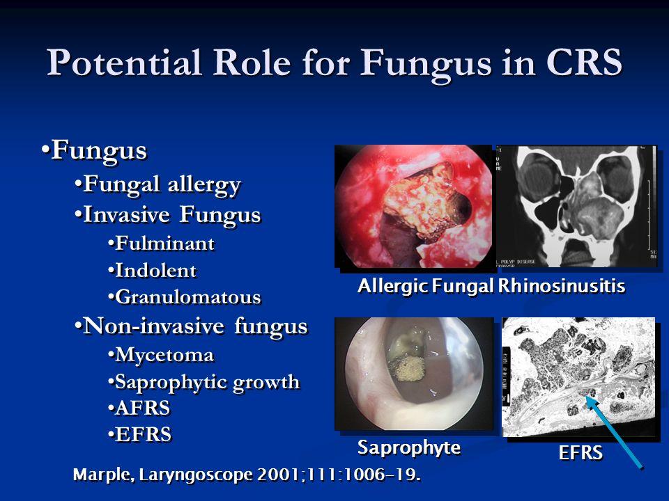 Treatment Principles I.Elimination of Fungal Antigen (Surgery) II.