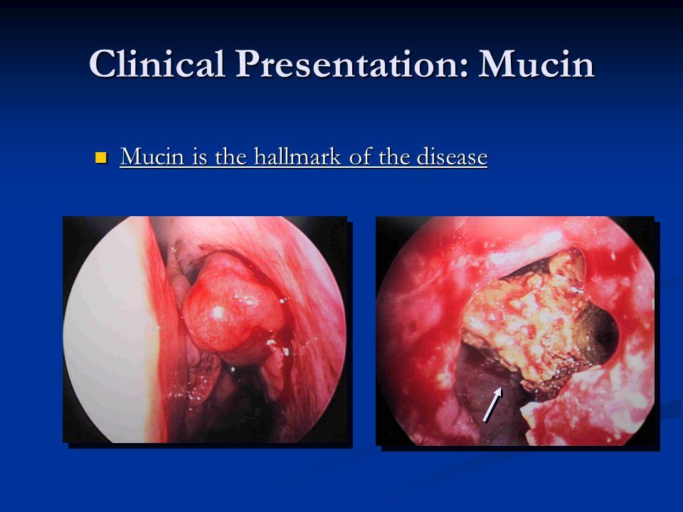 Clinical Presentation: Mucin Mucin is the hallmark of the disease Mucin is the hallmark of the disease