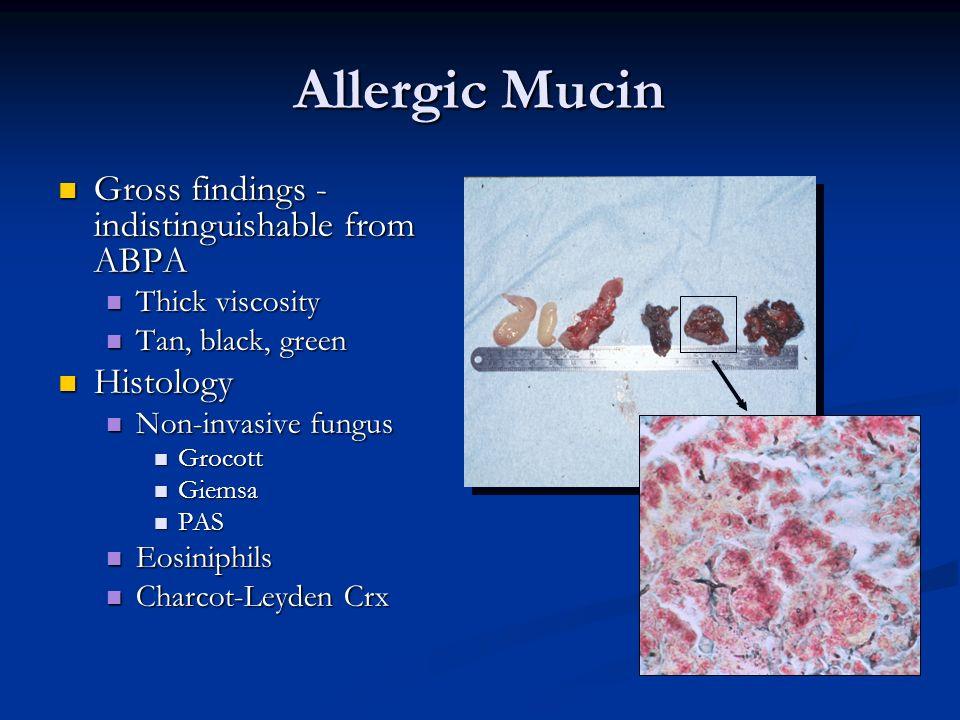 Diagnostic Criteria Cody Cody Allphin Allphin Lowry, Schaefer Lowry, Schaefer deShazo, Swain deShazo, Swain Bent and Kuhn Polyposis CT findings Eosinophilic mucus; no fungal invasion Gell & Coombs type I hypersensitivity JACI, Oto-HNS 2004 Eosinophilic mucin Histo – non invasive fungus Fungal specific IgE Bent, Kuhn, Oto-HNS 1994;111:580-88 Meltzer, Hamilos, Hadley, Lanza, Marple, et.