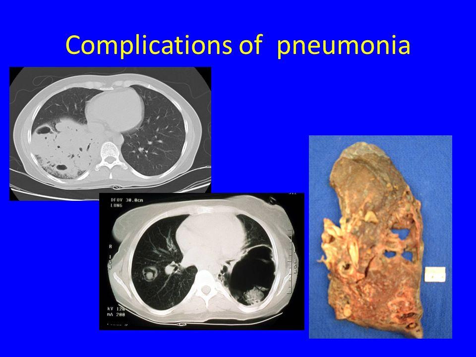 Complications of pneumonia