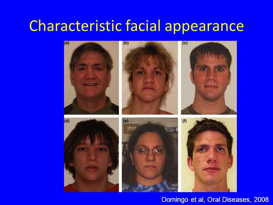 Characteristic facial appearance Domingo et al, Oral Diseases, 2008