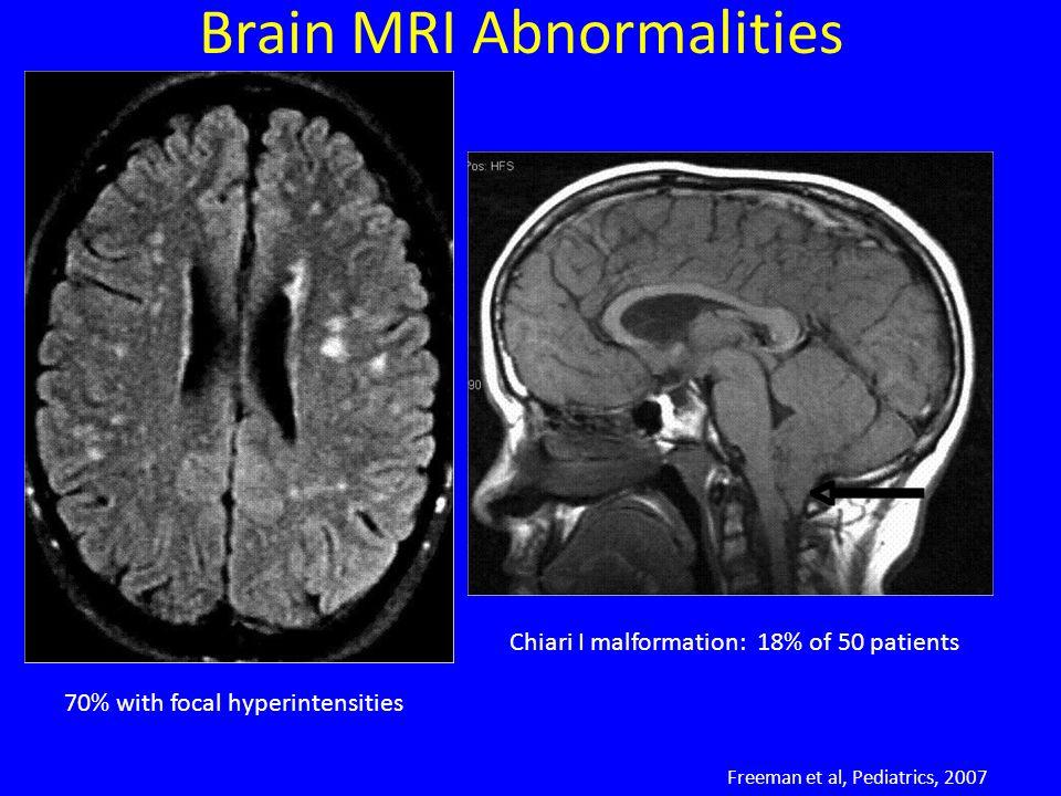 Brain MRI Abnormalities 70% with focal hyperintensities Freeman et al, Pediatrics, 2007 Chiari I malformation: 18% of 50 patients