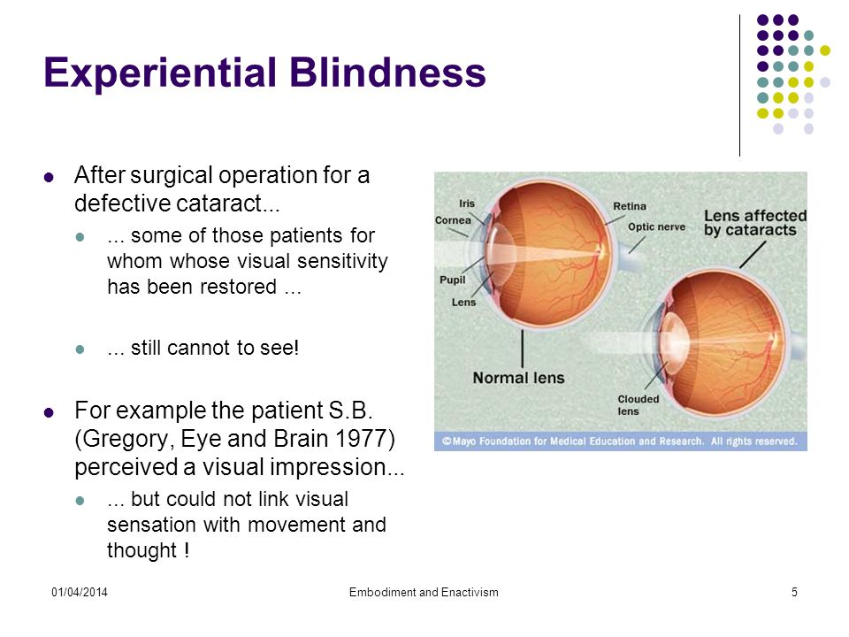 01/04/2014Embodiment and Enactivism5 Experiential Blindness After surgical operation for a defective cataract......