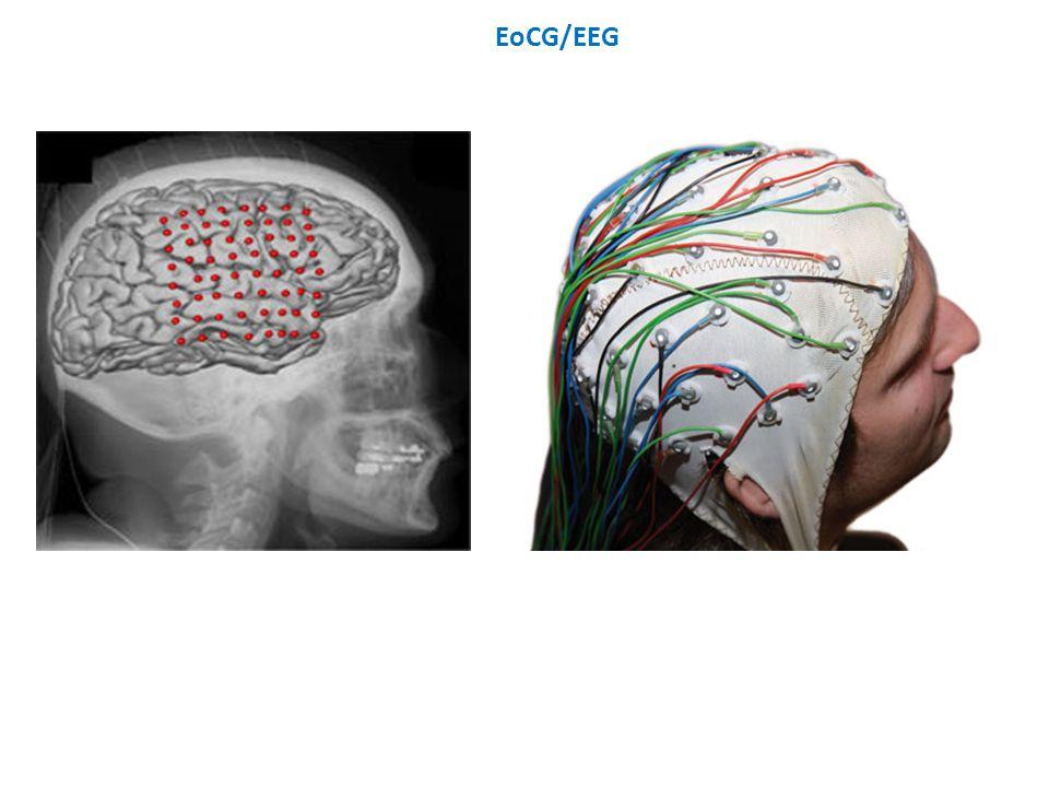 EoCG/EEG