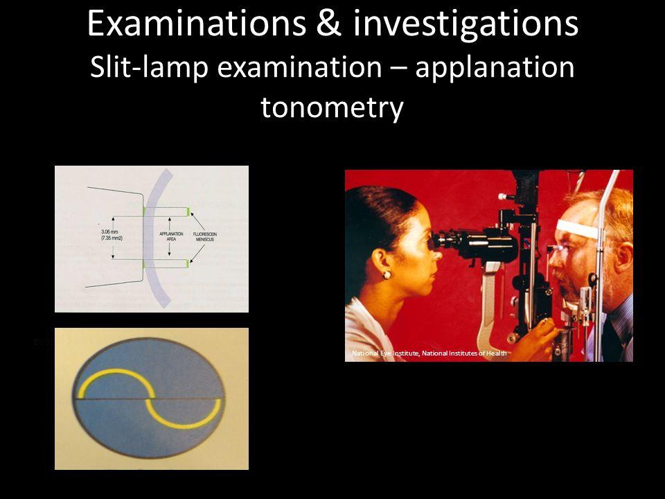 Examinations & investigations Slit-lamp examination – applanation tonometry European Glaucoma Society, 2008 National Eye Institute, National Institute