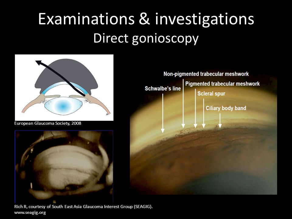 Examinations & investigations Direct gonioscopy Rich R, courtesy of South East Asia Glaucoma Interest Group (SEAGIG). www.seagig.org European Glaucoma