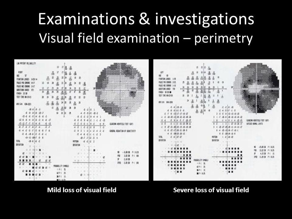 Examinations & investigations Visual field examination – perimetry Severe loss of visual fieldMild loss of visual field