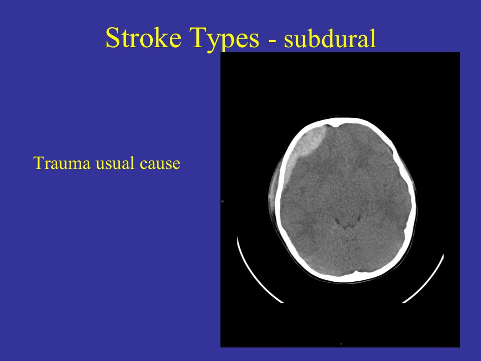 Stroke Types - subdural Trauma usual cause