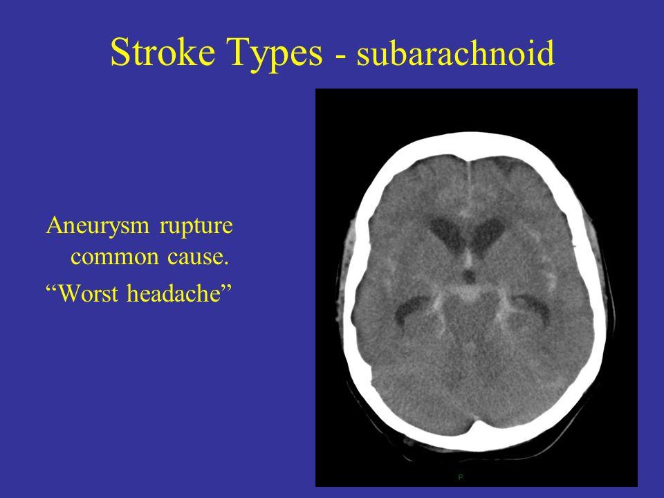 Stroke Types - subarachnoid Aneurysm rupture common cause. Worst headache