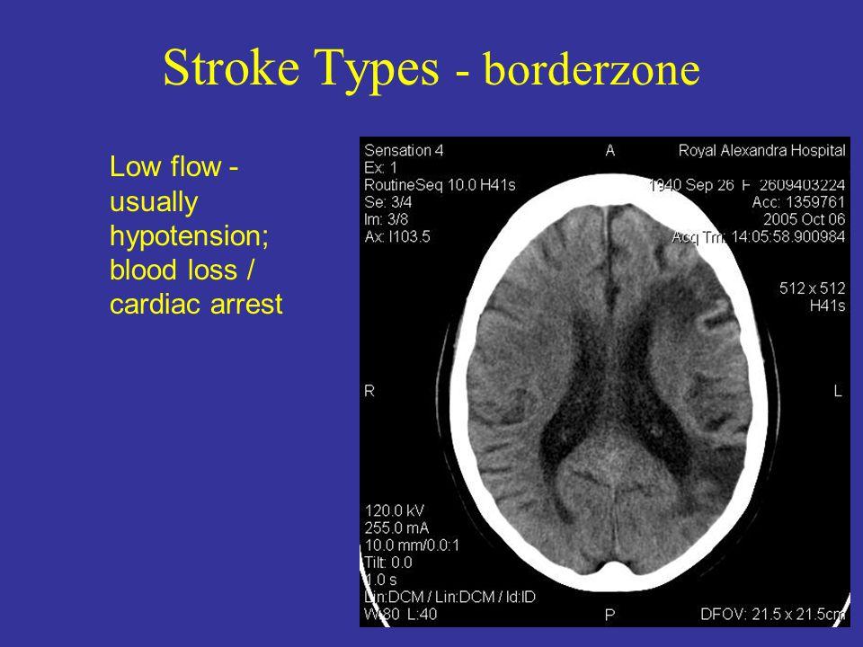 Stroke Types - borderzone Low flow - usually hypotension; blood loss / cardiac arrest