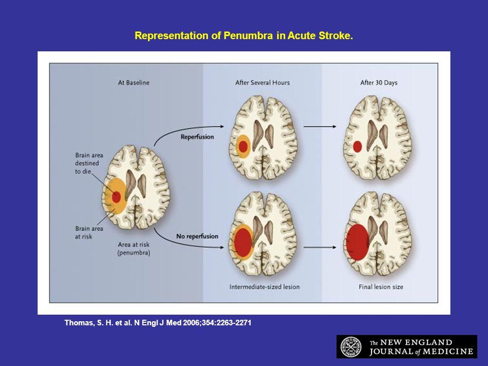 Thomas, S. H. et al. N Engl J Med 2006;354:2263-2271 Representation of Penumbra in Acute Stroke.