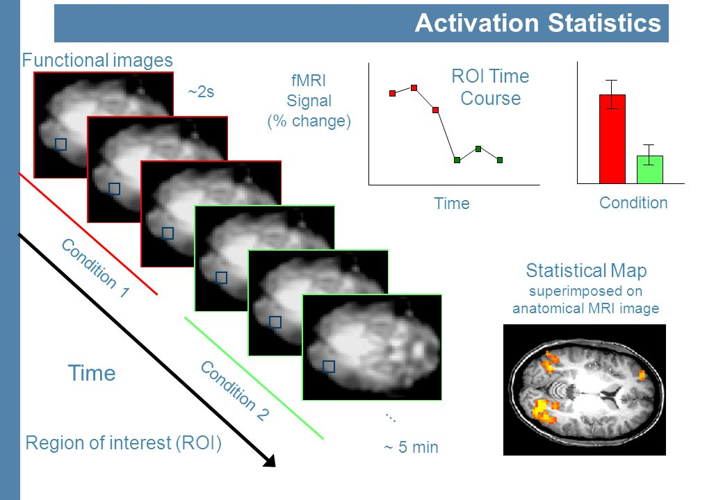 Statistical Map superimposed on anatomical MRI image ~2s Functional images Time Condition 1 Condition 2... ~ 5 min Time fMRI Signal (% change) ROI Tim