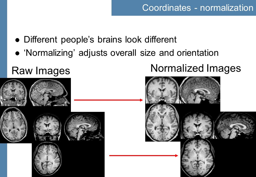 21 Coordinates - normalization Different peoples brains look different Normalizing adjusts overall size and orientation Raw Images Normalized Images