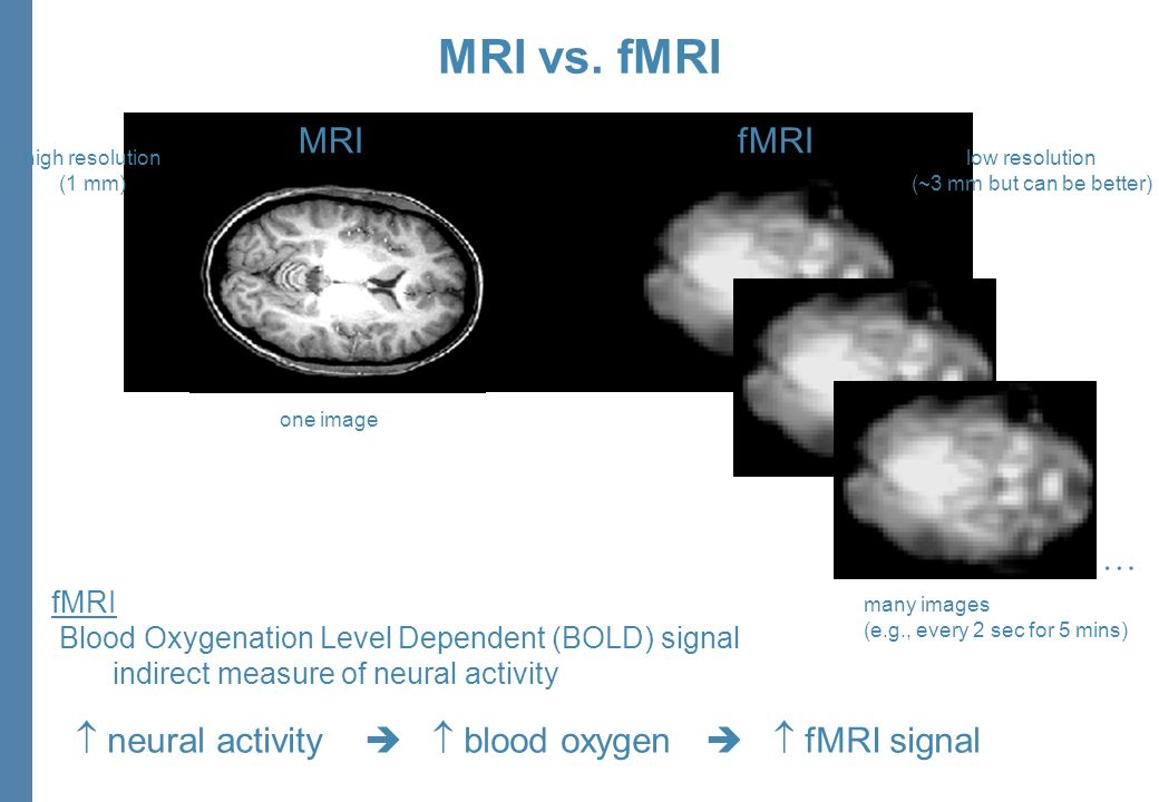 neural activity blood oxygen fMRI signal MRIfMRI one image many images (e.g., every 2 sec for 5 mins) high resolution (1 mm) low resolution (~3 mm but