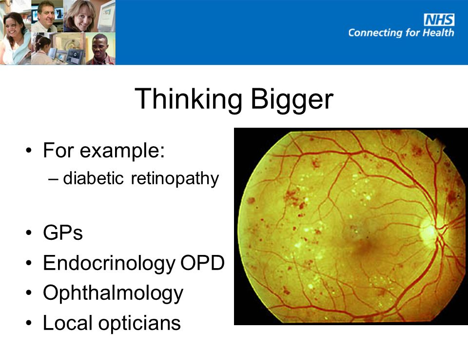 For example: –diabetic retinopathy GPs Endocrinology OPD Ophthalmology Local opticians Thinking Bigger