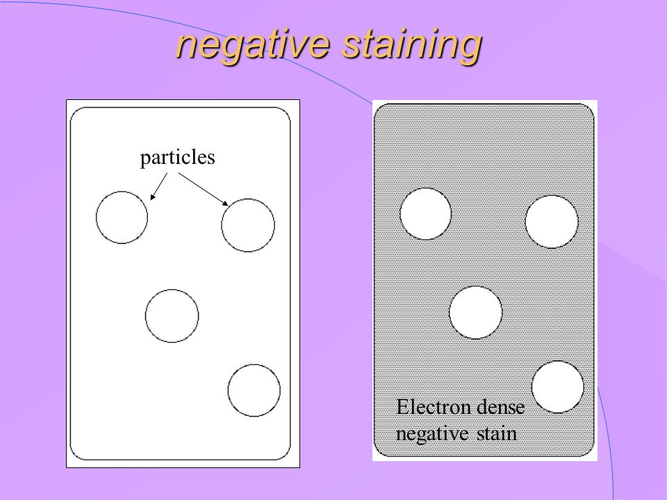 negative staining Electron dense negative stain particles