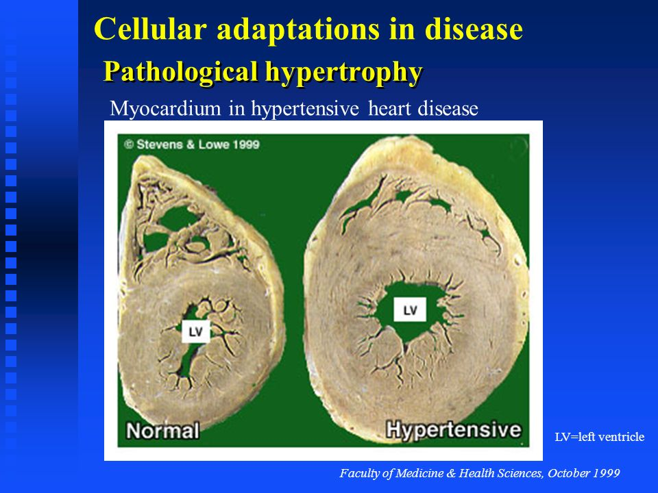 Faculty of Medicine & Health Sciences, October 1999 Cellular adaptations in disease Physiological hypertrophy Skeletal muscle hypertrophy in response