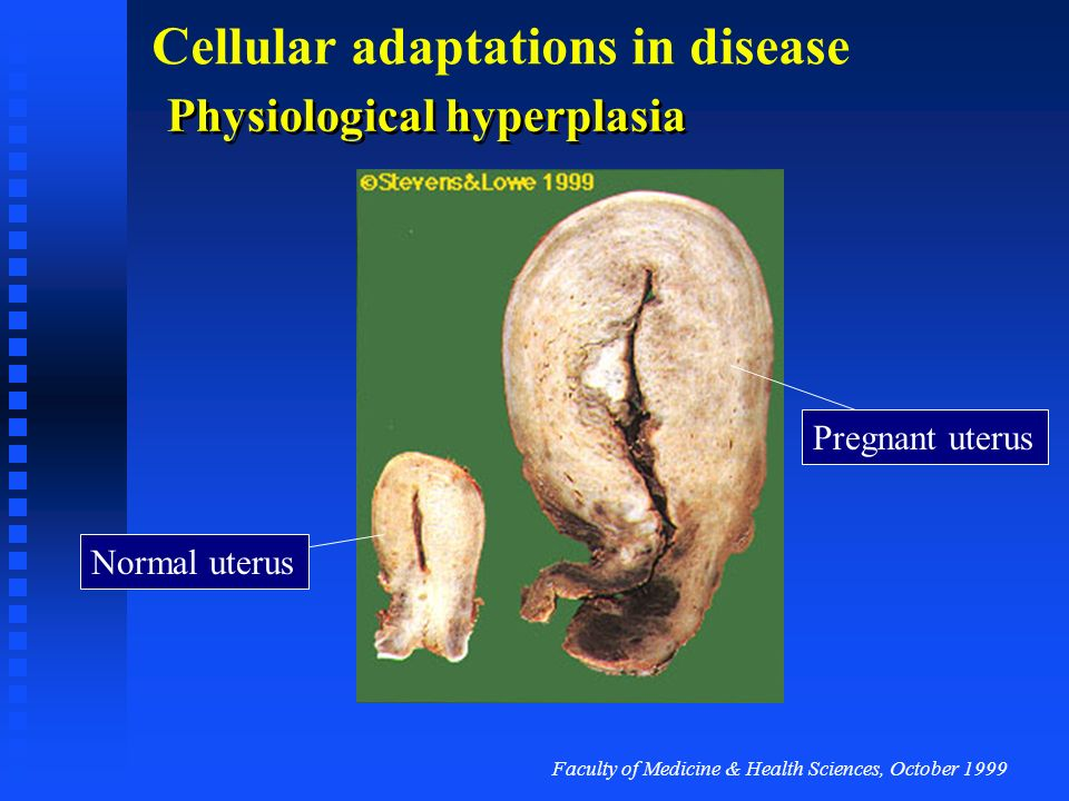 Faculty of Medicine & Health Sciences, October 1999 Cellular adaptations in disease Physiological hyperplasia Endometrium in the menstrual cycle