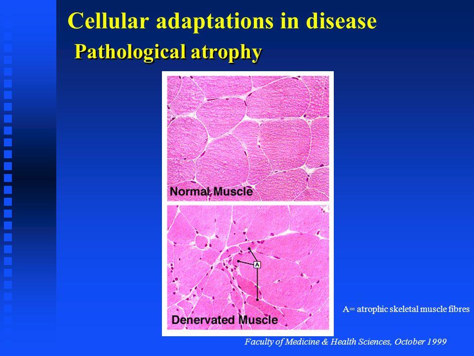 Faculty of Medicine & Health Sciences, October 1999 Cellular adaptations in disease Common causes of atrophy Denervation Denervation Immobilisation Im