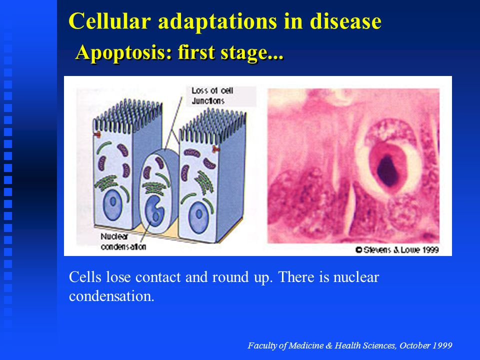 Faculty of Medicine & Health Sciences, October 1999 Cellular adaptations in disease Apoptosis Normal cells are closely anchored by cell junctions