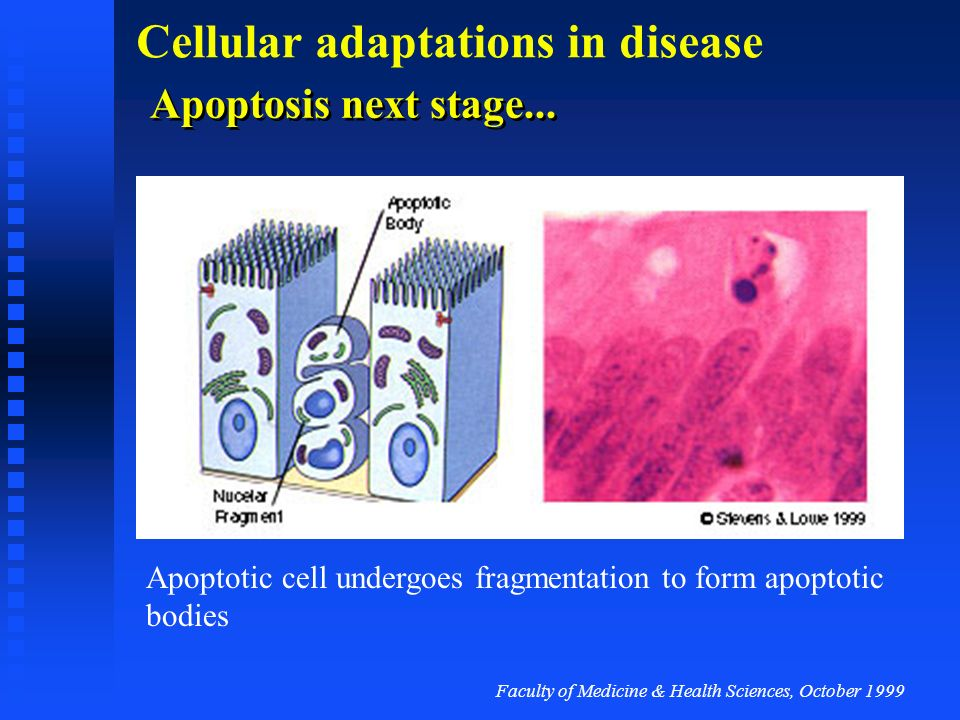 Faculty of Medicine & Health Sciences, October 1999 Cellular adaptations in disease Apoptosis: first stage... Cells lose contact and round up. There i