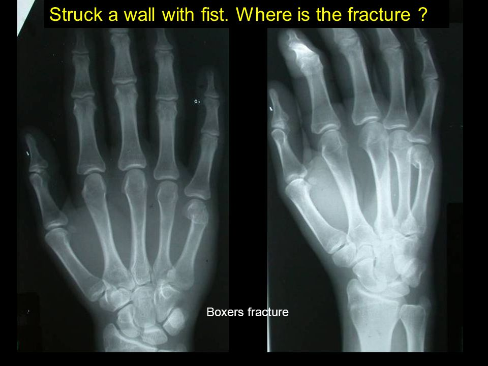 Struck a wall with fist. Where is the fracture ? Boxers fracture