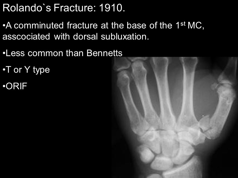 Rolando`s Fracture: 1910. A comminuted fracture at the base of the 1 st MC, asscociated with dorsal subluxation. Less common than Bennetts T or Y type