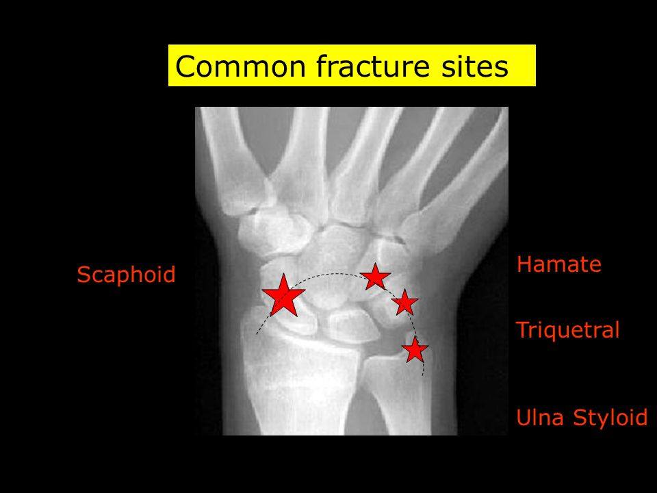 Common fracture sites Scaphoid Hamate Triquetral Ulna Styloid
