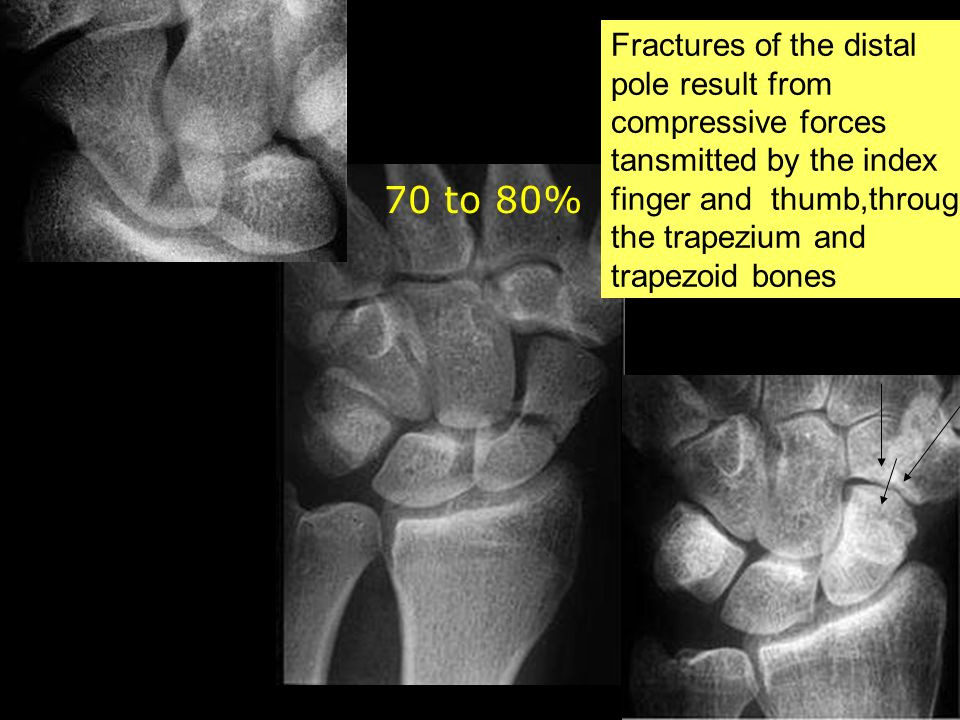 70 to 80% Fractures of the distal pole result from compressive forces tansmitted by the index finger and thumb,through the trapezium and trapezoid bon