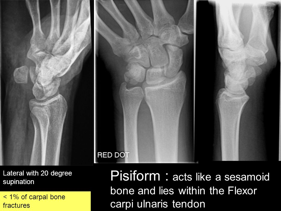 Lateral with 20 degree supination Pisiform : acts like a sesamoid bone and lies within the Flexor carpi ulnaris tendon < 1% of carpal bone fractures