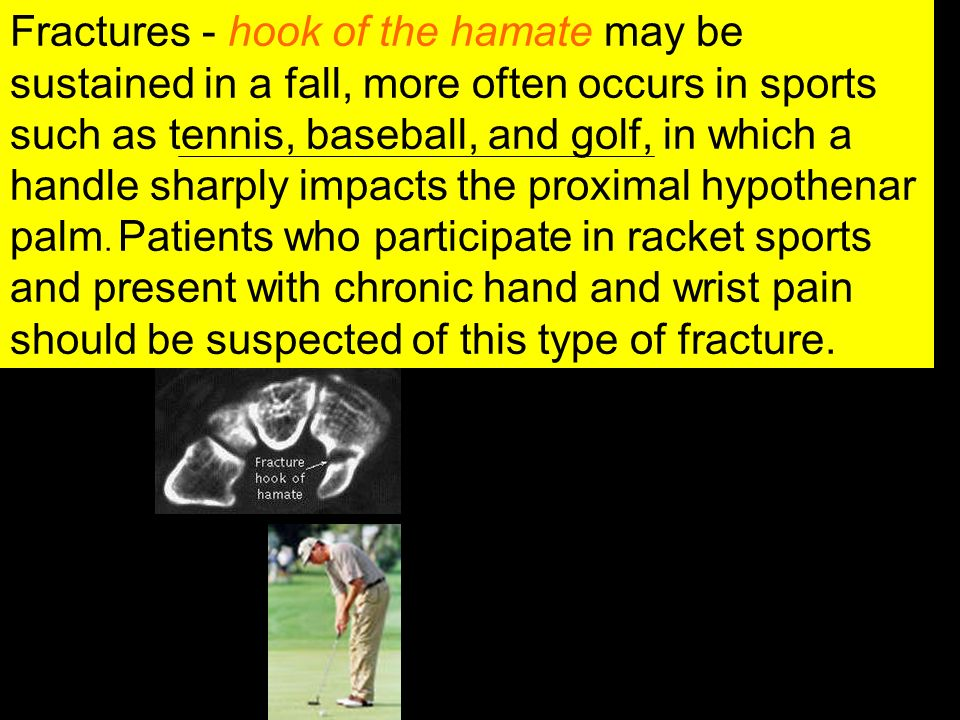 Fractures - hook of the hamate may be sustained in a fall, more often occurs in sports such as tennis, baseball, and golf, in which a handle sharply i