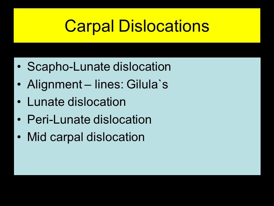 Carpal Dislocations Scapho-Lunate dislocation Alignment – lines: Gilula`s Lunate dislocation Peri-Lunate dislocation Mid carpal dislocation
