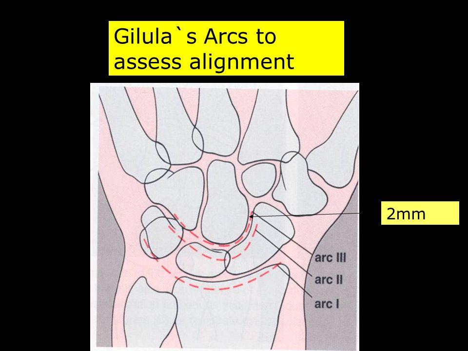 Gilula`s Arcs to assess alignment 2mm