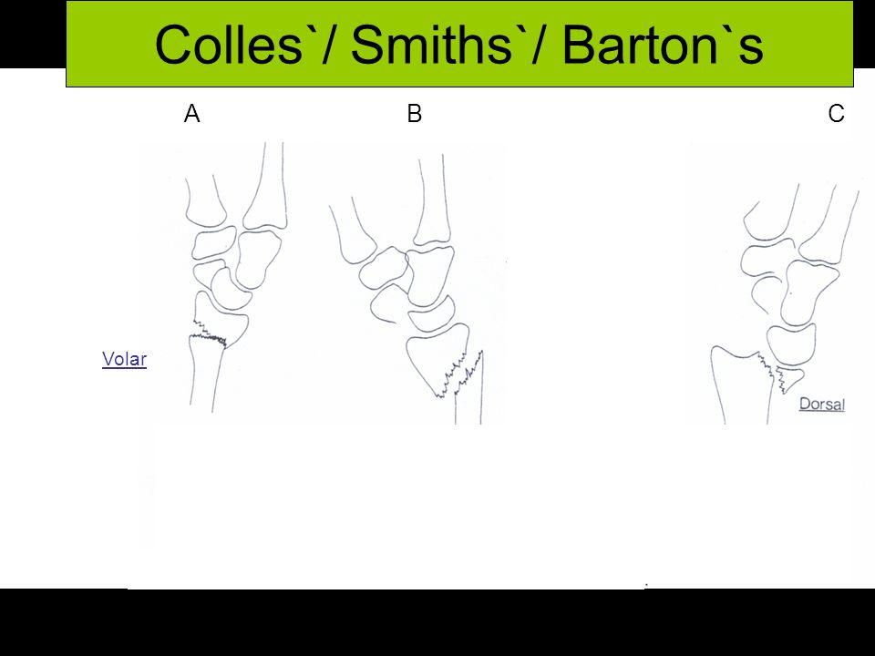 A B C C Colles`/ Smiths`/ Barton`s Volar