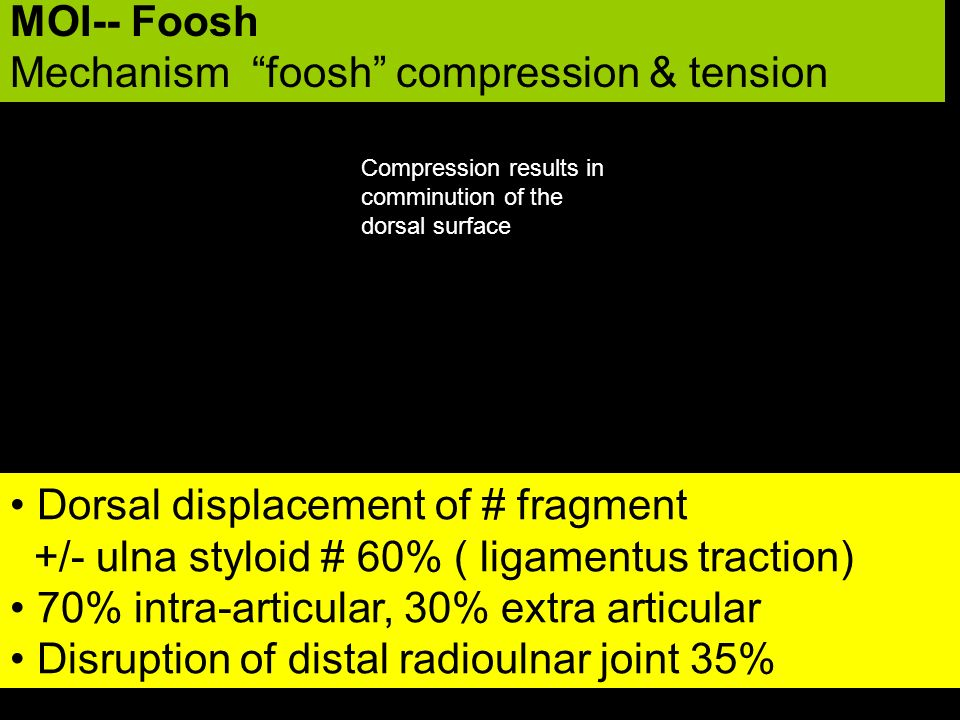 MOI-- Foosh Mechanism foosh compression & tension Dorsal displacement of # fragment +/- ulna styloid # 60% ( ligamentus traction) 70% intra-articular,