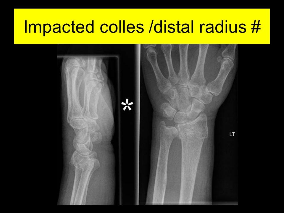 Impacted colles /distal radius #