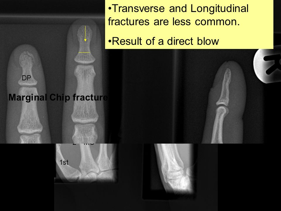 Impacted colles /distal radius #