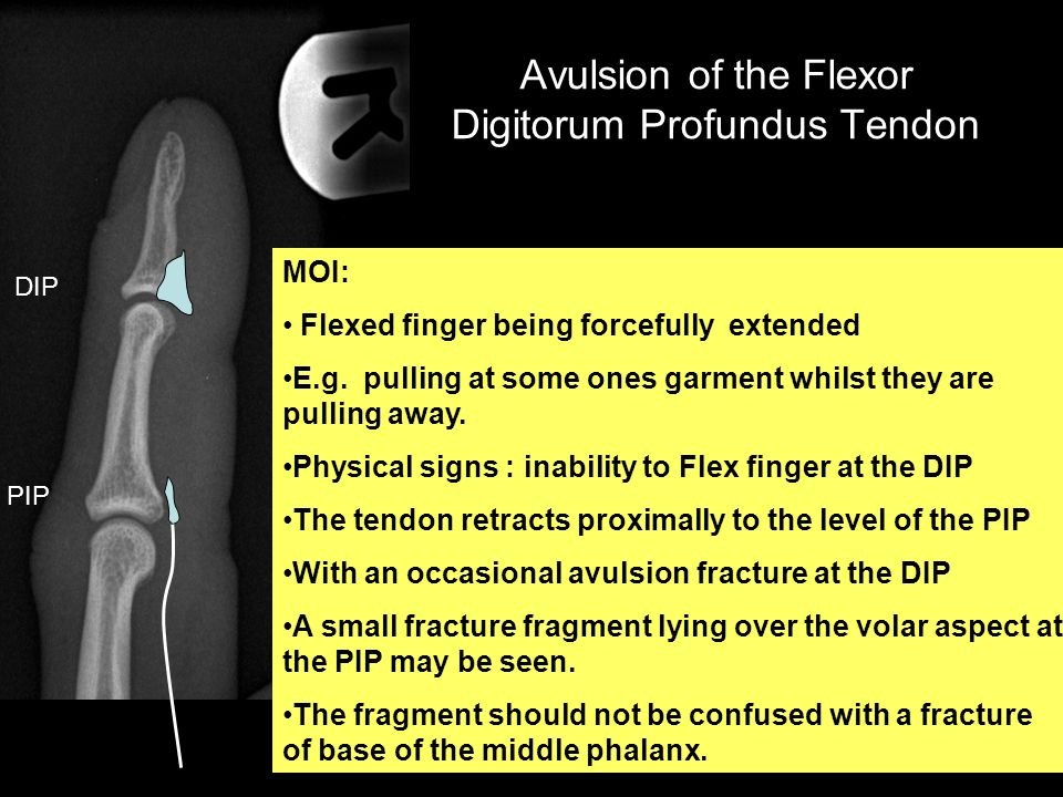 Avulsion of the Flexor Digitorum Profundus Tendon MOI: Flexed finger being forcefully extended E.g. pulling at some ones garment whilst they are pulli