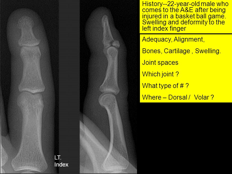 Forced Flexion Mallet Finger Or Baseball finger DiagnosisIntra-articular, avulsion # on dorsal aspect of DIP, at the site of extensor tendon insertion.