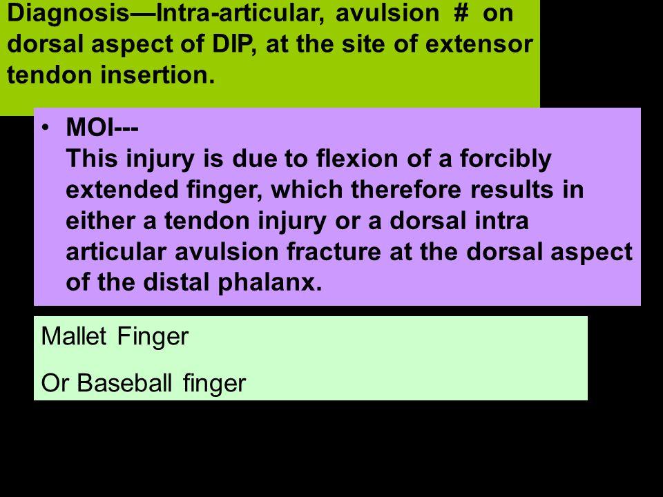 Forced Flexion Mallet Finger Or Baseball finger DiagnosisIntra-articular, avulsion # on dorsal aspect of DIP, at the site of extensor tendon insertion