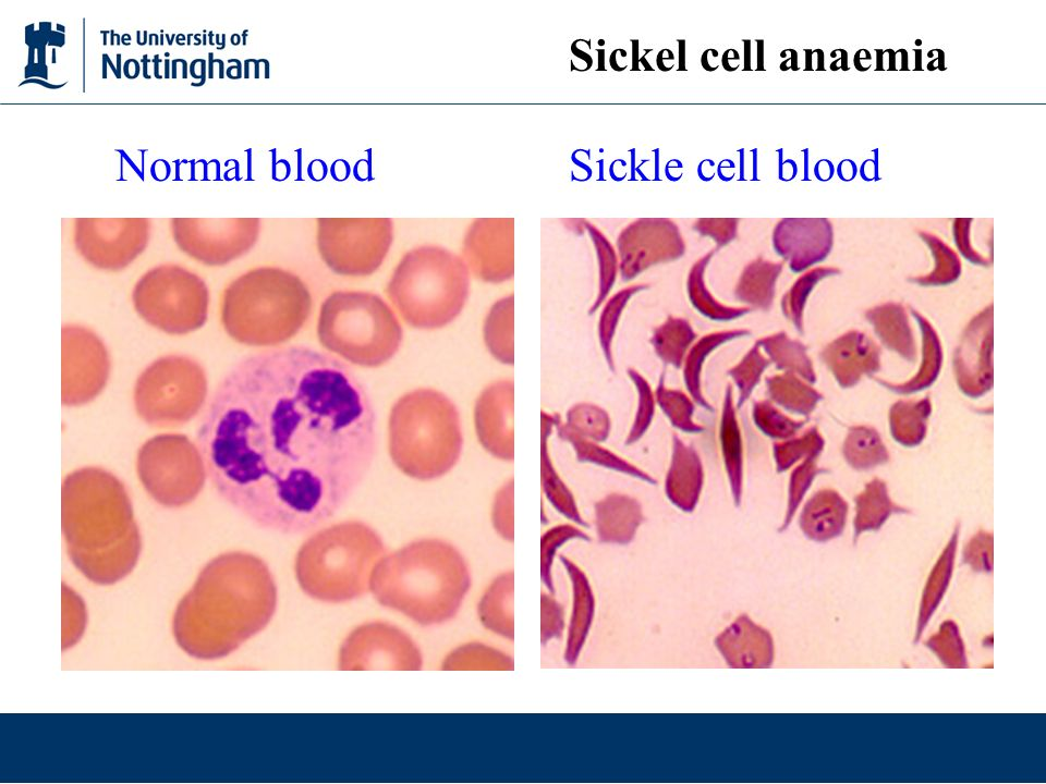 Normal blood Sickle cell blood Sickel cell anaemia