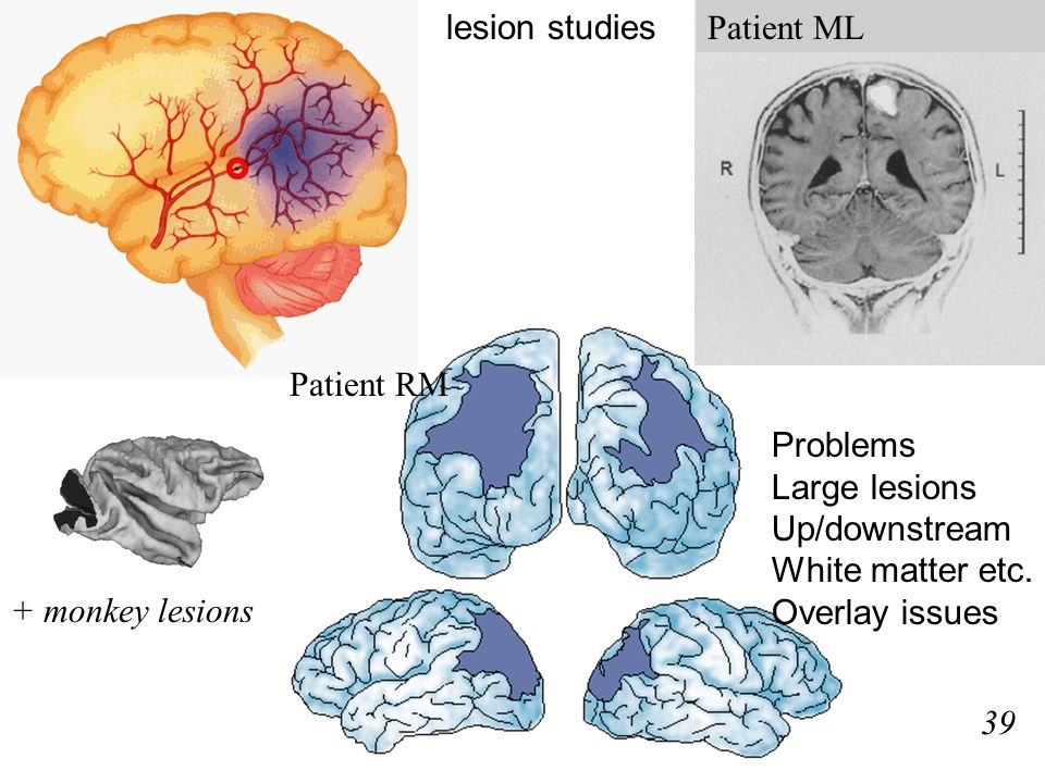 Patient RM Patient ML lesion studies 39 + monkey lesions Problems Large lesions Up/downstream White matter etc.