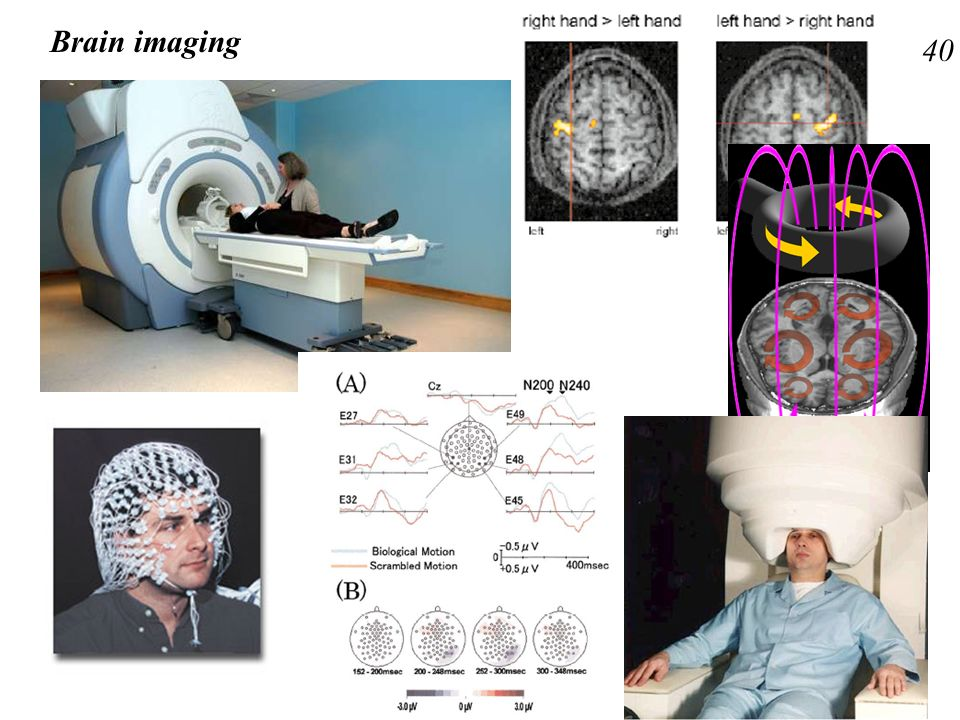 Brain imaging 40