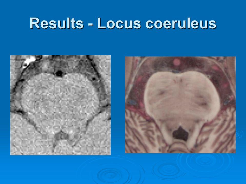 Results - Locus coeruleus