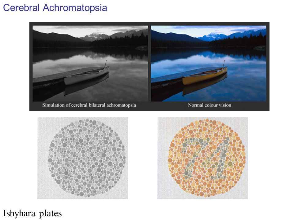 Ishyhara plates Cerebral Achromatopsia