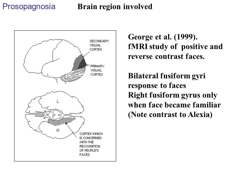 Prosopagnosia George et al. (1999). fMRI study of positive and reverse contrast faces. Bilateral fusiform gyri response to faces Right fusiform gyrus